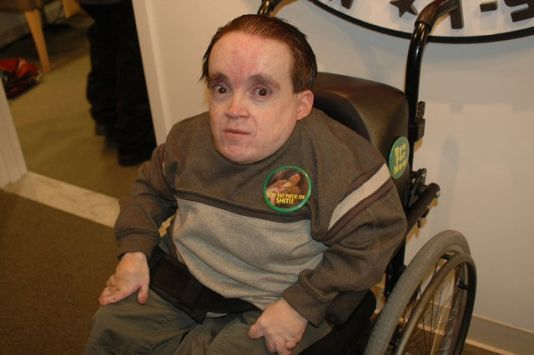 Eric the midget with
